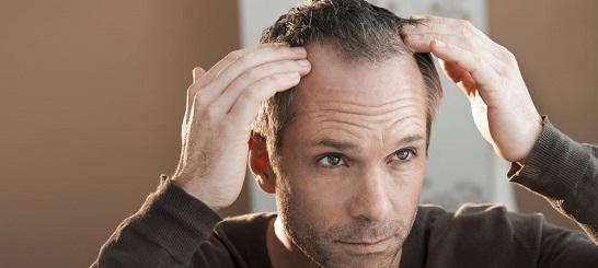 激安・格安の自毛植毛、最安値は?