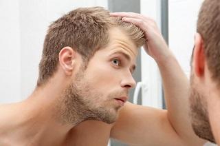 自毛植毛の最安値はどこ?