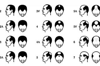 M字はげの原因はAGA(男性型脱毛症)