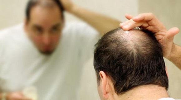 頭頂部の薄毛を治すために自毛植毛を受けよう