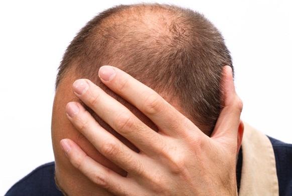頭皮のてっぺんに自毛植毛を行うメリット