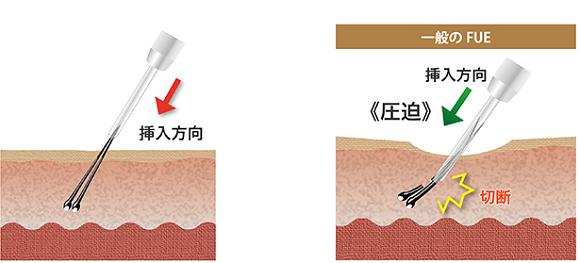 最新の自毛植毛のi-SAFE法が実施されている
