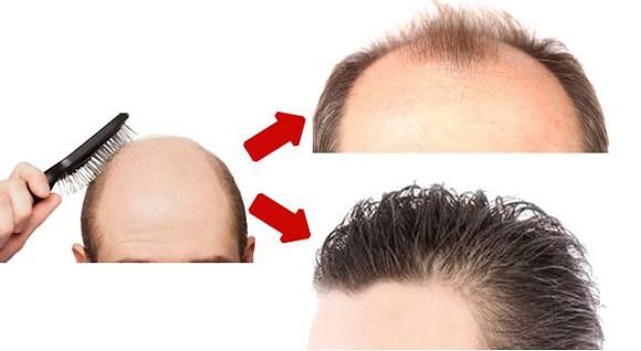 植毛の範囲
