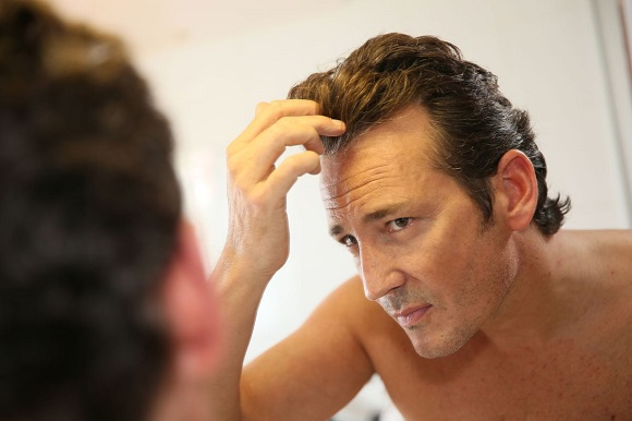 パンチ式の自毛植毛の方法やメリットをチェック!